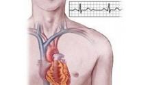 Синусовая брадикардия сердца: что это такое, симптомы и лечение
