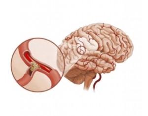 Атеросклероз сосудов головного мозга: симптомы и лечение, правила питания