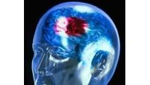 Методы лечения церебрального атеросклероза сосудов головного мозга