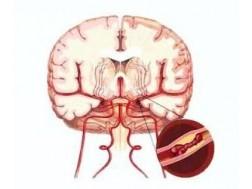 Симптомы нарушения кровообращения головного мозга