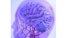 Причины, симптомы, и лечение сужение сосудов головного мозга