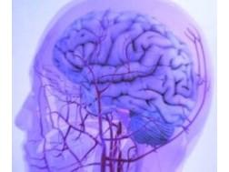 Как определить и вылечить сужение сосудов мозга