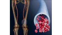 Симптомы тромбоза глубоких вен нижних конечностей, фото ног, лечение