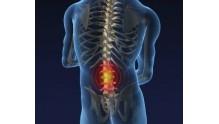 Симптомы и лечение грыжи межпозвоночного диска поясничного отдела позвоночника