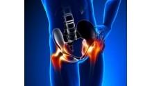 Коксартроз тазобедренного сустава: симптомы и лечение, операция