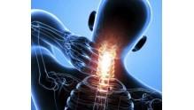 Вертеброгенная цервикокраниалгия: что это такое, как проявляется и лечится