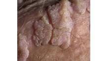 Как проводить лечение папилломавирусной инфекции у мужчин, препараты и терапия