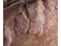 папилломавирусная инфекция у мужчин фото