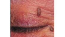 Как проявляется папилломавирусная инфекция у женщин, фото 1 стадии начальной
