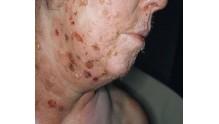 Как выглядит болезнь пузырчатка, фото на теле у взрослых и детей