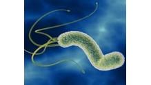 Признаки заболеваний вызванных хеликобактериозом