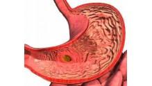 Медикаменты и средства медицины для лечения гастрита