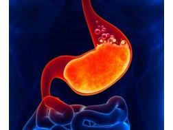 Как определить кислотность желудка в домашних условиях без гастроскопии