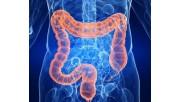 Колит кишечника: симптомы и лечение у взрослых, чем опасен диагноз