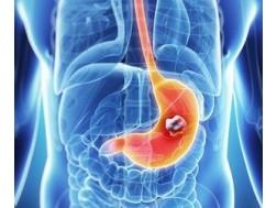 Признаки рака желудка: первые симптомы на ранних стадиях