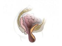 Причины и варианты лечения опущения стенок влагалища