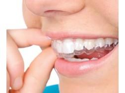 Помогут ли элайнеры для выравнивания зубов, цена, отзывы