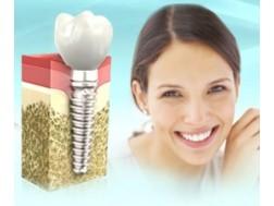 Вред и противопоказания имплантов зубов, отзывы о приживаемости