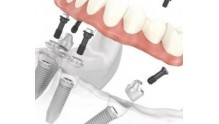 Как выбрать импланты для зубов, виды и цены