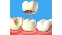 Какие лучше ставить коронки на зубы, цена и срок службы
