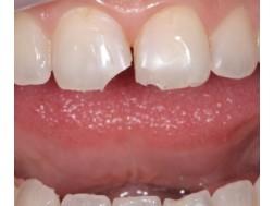 Как происходит наращивание зубов, фото до и после процедуры