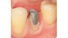 Виды, изготовление и установка вкладки на зуб под коронку