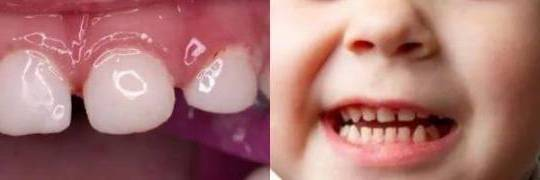 неправильное расположение зубов