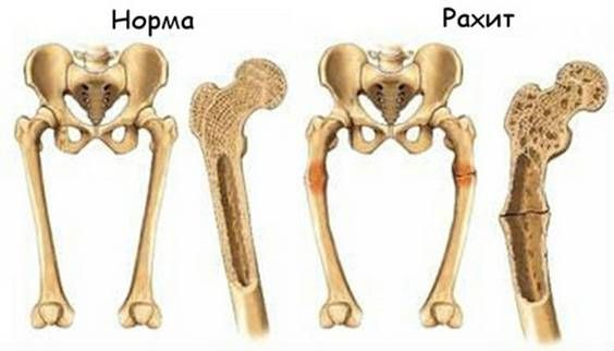 кости в норме и с рахитом