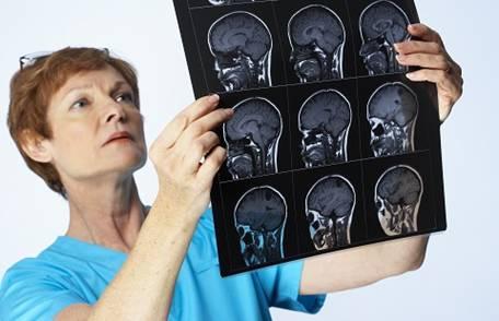 воспаление мозга на рентгене