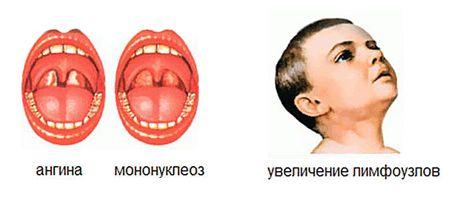 симптомы как у ангины