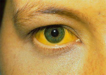 желтеет глаз