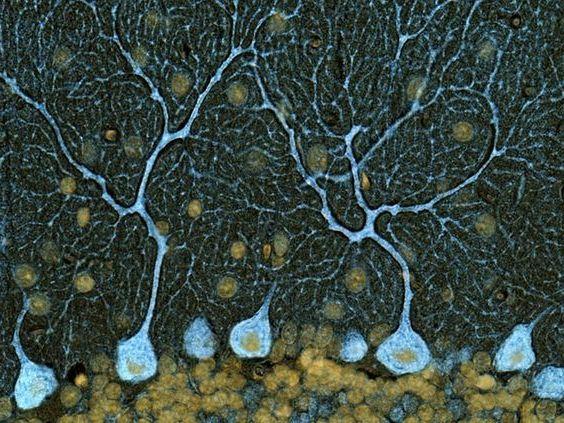 ткань мозжечка