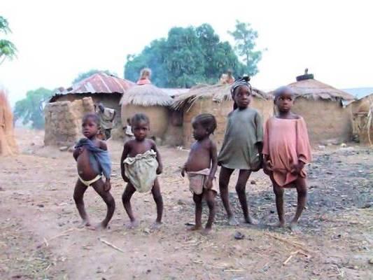 рахит у африканских детей