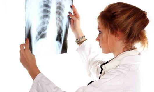 на рентген снимке
