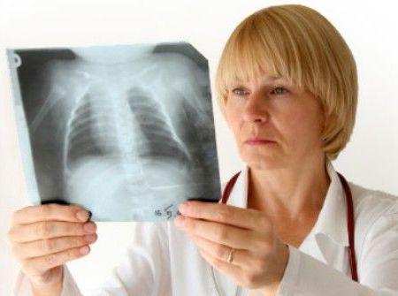 врач рентгенолог со снимком