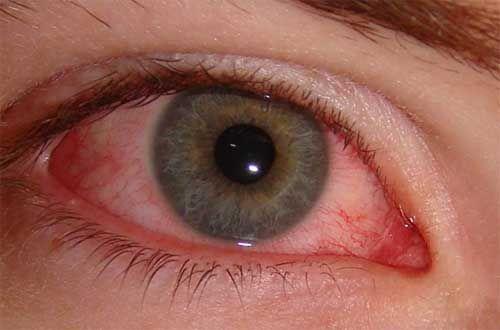 как выглядит аллергический конъюнктивит
