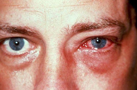 раздражение глаза от аллергического конъюнктивита