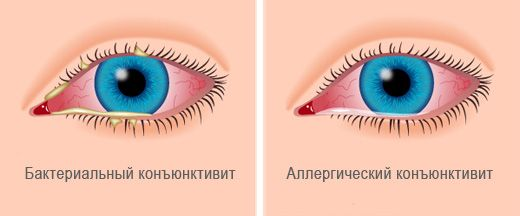 бактериальный и аллергический