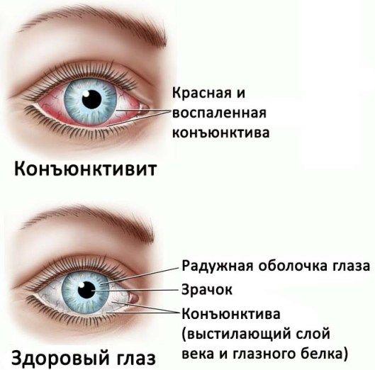 сравнения глаза с конъюнктивитом и без