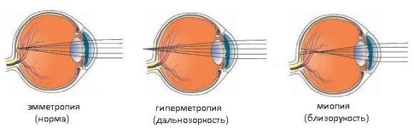 Профилактика для глаз как поддержать зрение и улучшить его