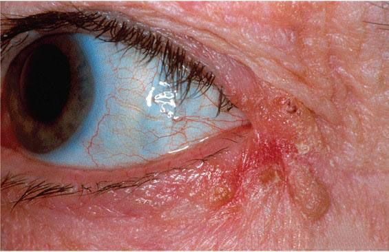 протекание недуга блефарит