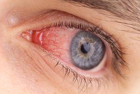 покраснение глаз и чешется