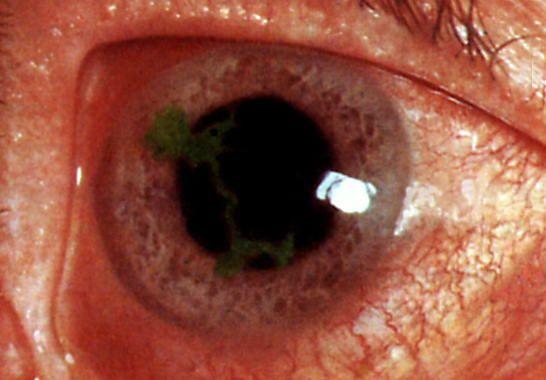 запущенный случай глаукомы