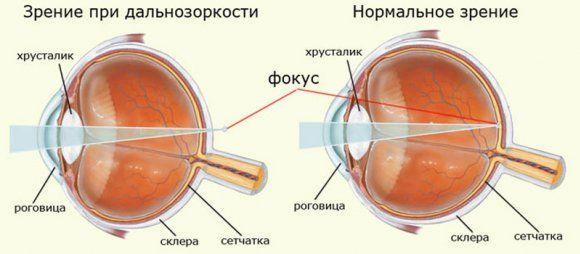 глаз при нормальном зрении и гиперметропии