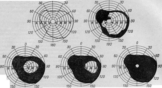 как протекает глаукома