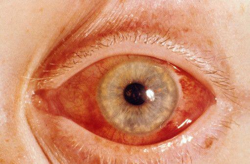 признак глаукомы глаза