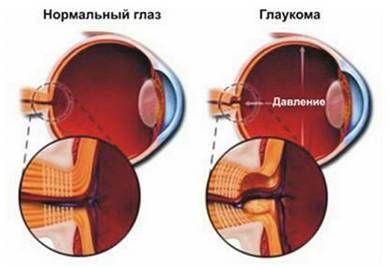 глаз в норме и с глаукомой