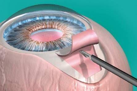 установка дренажного импланта