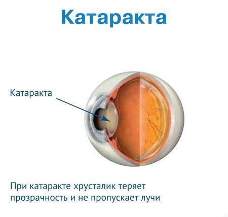 влияние катаракты на хрусталик