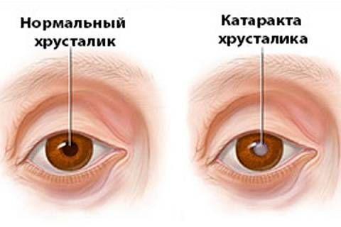 нормальный хрусталик и с катарактой